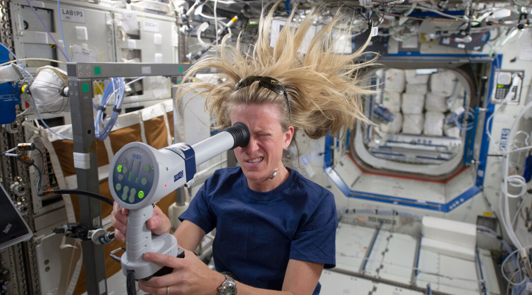 Spaceflight does some weird things to astronauts' bodies